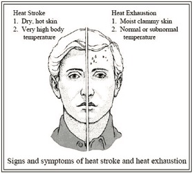 Signs and symptoms of heat stroke and heat exhaustion