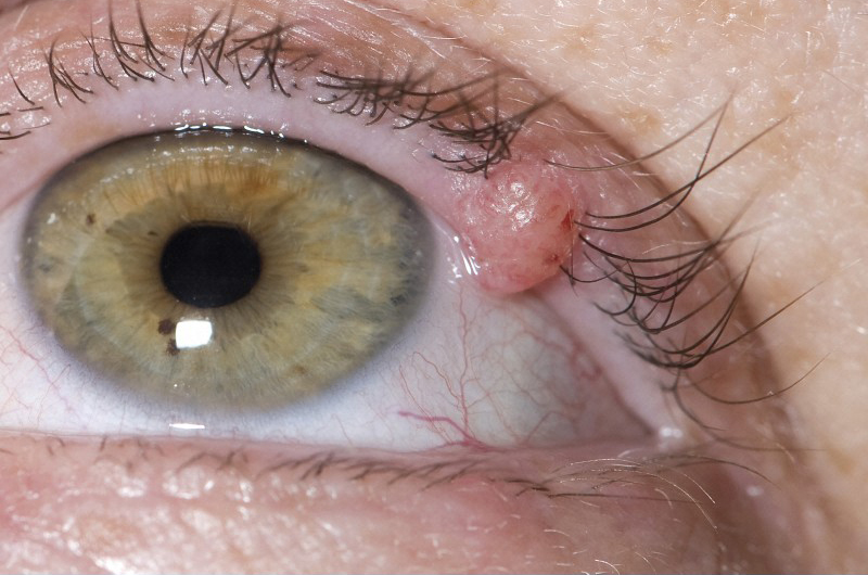 basal cell carcinoma on the eyelid