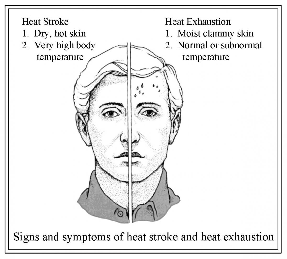 Signs and symptoms of heat stroke (dry, hot skin and very high body temp) and heat exhaustion (moist, clammy skin and normal or subnormal body temp)